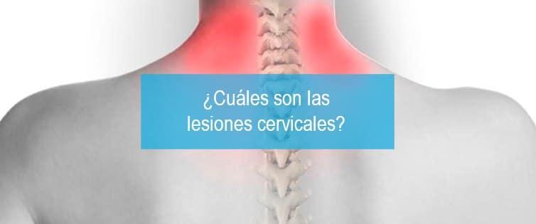 lesiones-cervicales-cuales-son